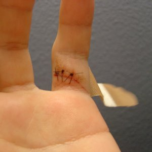 my stiches